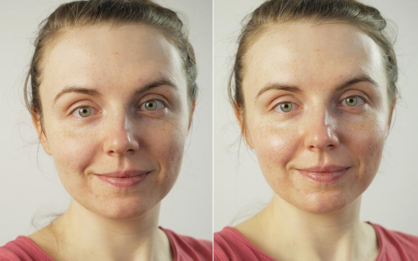 Babydream Med+ Gesichtscreme auf Haut