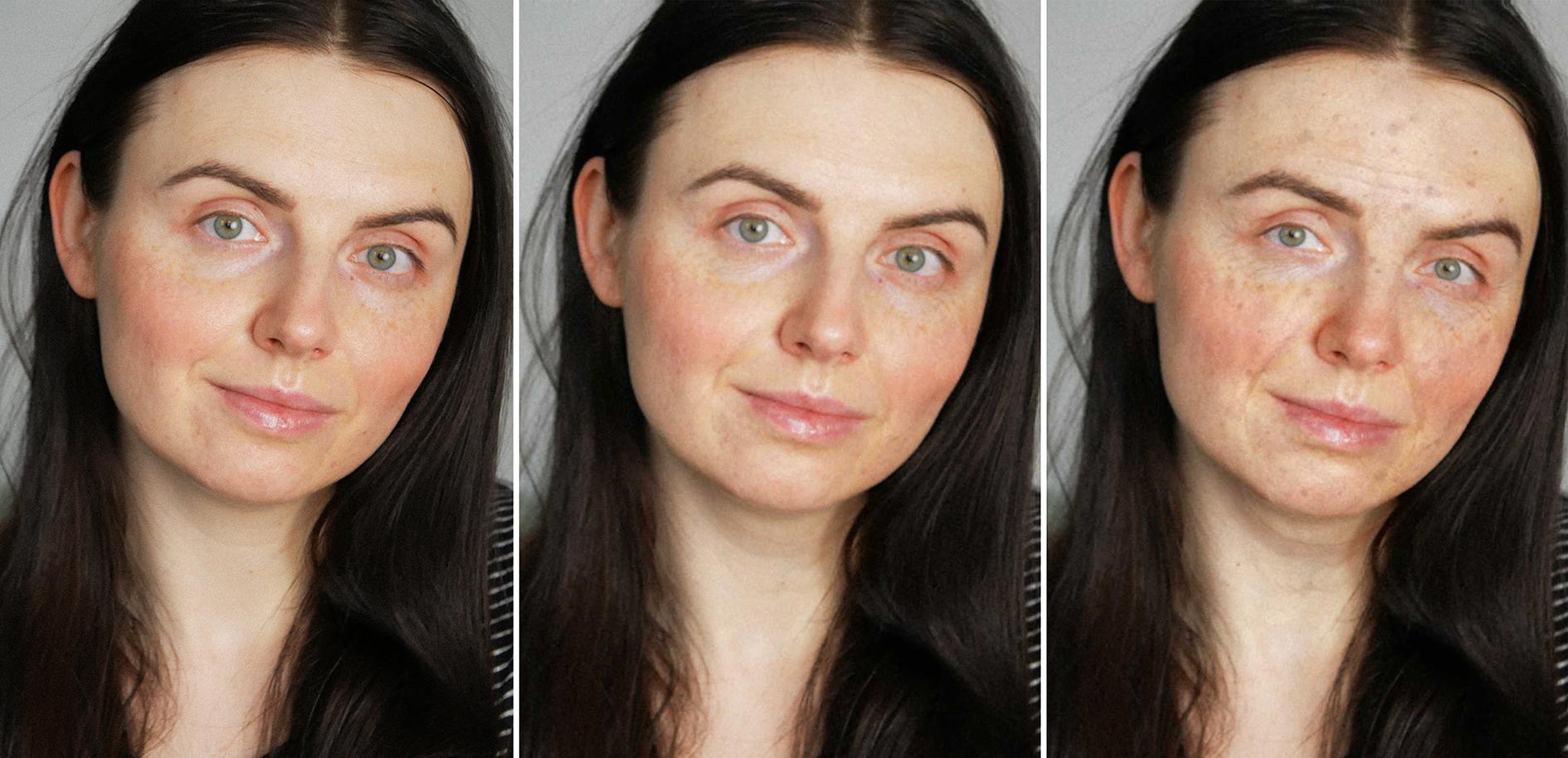 Hautlaterung Bild, erste Bild aktuell, zweites Bild intrinsische Hautalterung, drittes Bild extrinsische Hautalterung